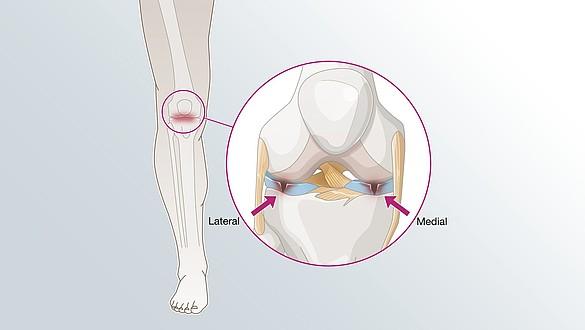 Meniscus damage lesion illustration -